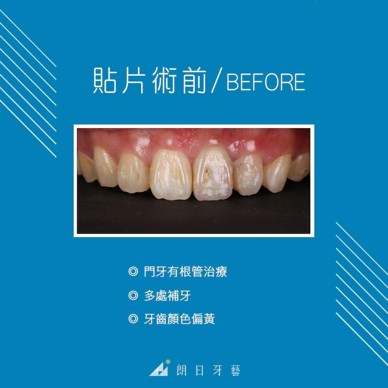 根管治療牙齒變黑-牙齒矯正-蛀牙-牙齒黃-陶瓷貼片療程前-台中-劉得廷醫師
