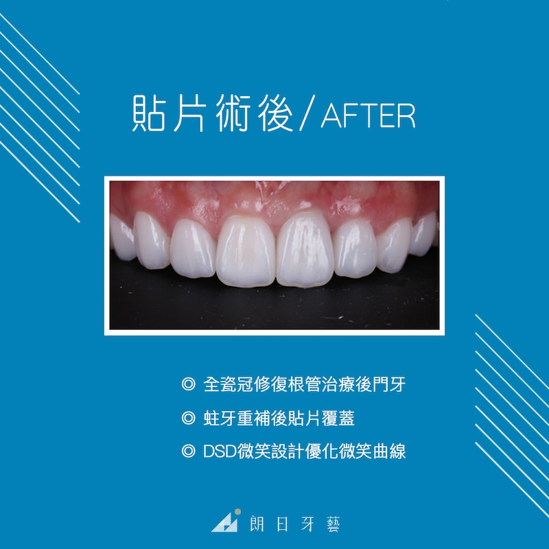 台中-陶瓷貼片推薦-劉得廷醫師-台北朱小姐-輕瓷美白貼片術後照-全瓷冠修復根管治療的門牙-DSD數位微笑設計-瓷牙貼片修復蛀牙