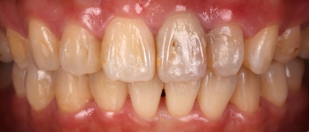 根管治療牙齒變黑-牙齒矯正-蛀牙-牙齒黃-陶瓷貼片療程前-牙齒近照-台中-劉得廷醫師