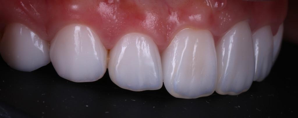 台中-陶瓷貼片推薦-劉得廷醫師-根管治療-抽神經牙齒變黑-牙齒黃-DSD數位微笑設計-全瓷冠-台北朱小姐-輕瓷美白貼片療程後-牙齒右側面照