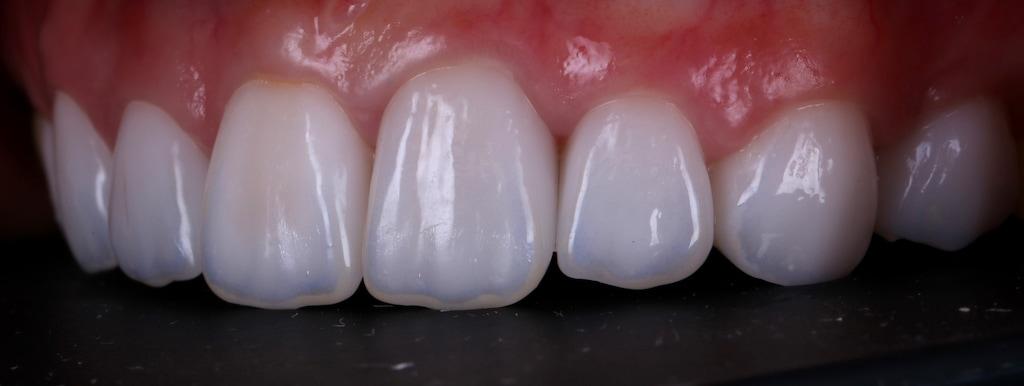 台中-陶瓷貼片推薦-劉得廷醫師-根管治療-抽神經牙齒變黑-牙齒黃-DSD數位微笑設計-全瓷冠-台北朱小姐-輕瓷美白貼片療程後-牙齒左側面照