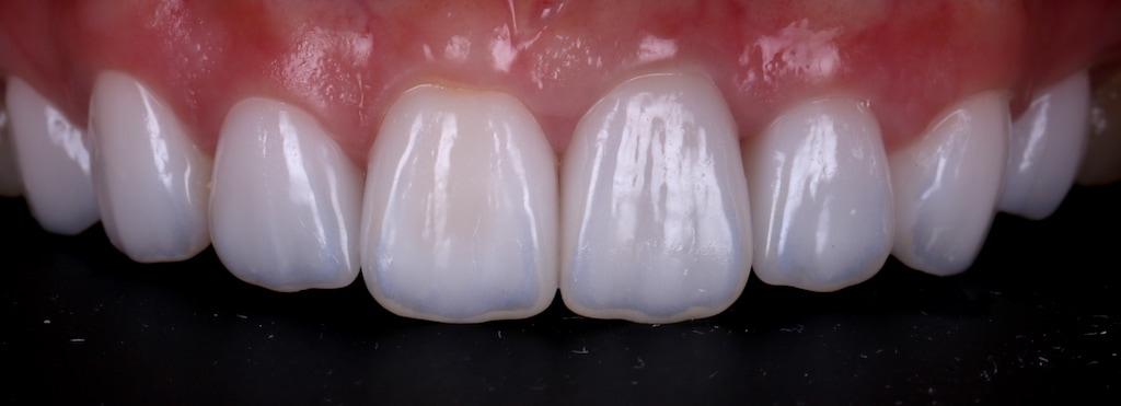 台中-陶瓷貼片推薦-劉得廷醫師-根管治療-抽神經牙齒變黑-牙齒黃-DSD數位微笑設計-全瓷冠-台北朱小姐-輕瓷美白貼片療程後-牙齒正面照