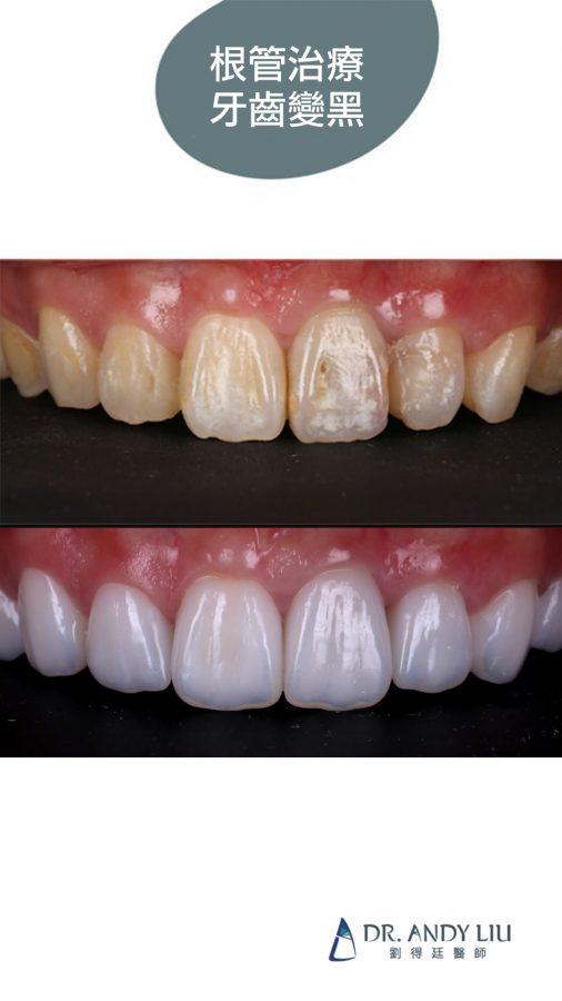 牙齒矯正後變黃、根管治療牙齒變黑,用陶瓷貼片一次解決!