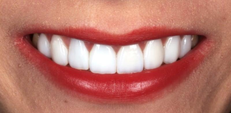 陶瓷貼片-全瓷冠-台中-推薦-劉得廷醫師-DSD數位微笑設計-牙醫系學生Katherine-用全瓷冠修復門牙-貼片修復蛀牙-術後笑容