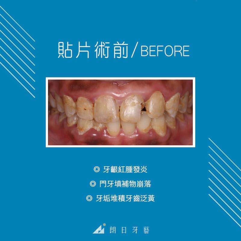 陶瓷貼片-全瓷冠-牙齦發炎-牙周病-牙菌斑-牙齒貼片-台中牙齒美白推薦-劉得廷醫師-Bonnie牙齒美白心得-陶瓷貼片療程前牙齒外觀問題