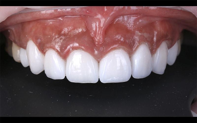 陶瓷貼片-DSD數位微笑設計-牙齒矯正後-牙齒美白