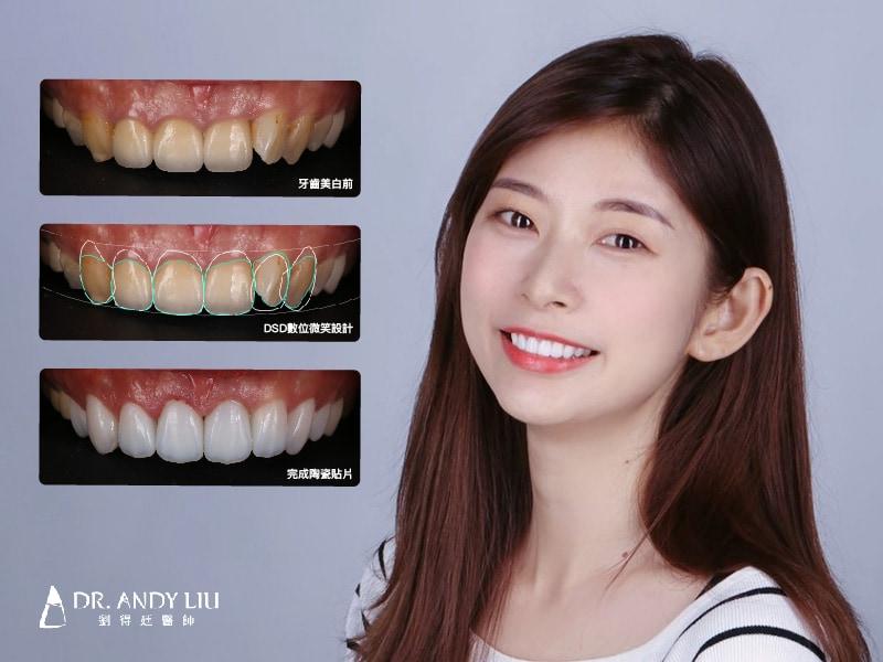 陶瓷貼片-牙齒美白案例-台中陶瓷貼片-推薦-劉得廷醫師