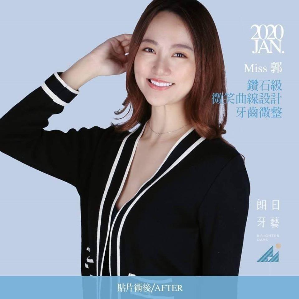 一日美齒-陶瓷貼片療程後-郭小姐笑容-台中陶瓷貼片推薦-劉得廷醫師