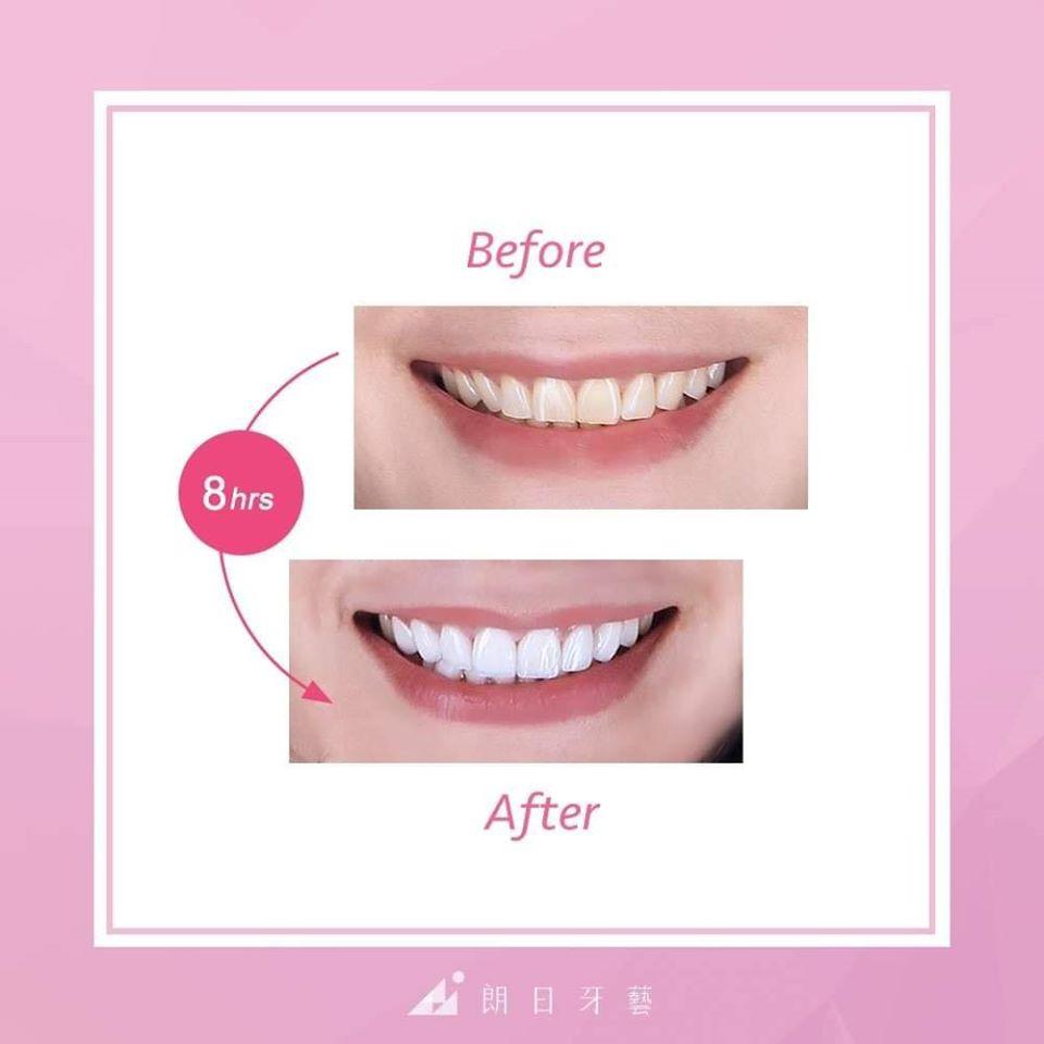 陶瓷貼片療程前後對比-Miss-Lin-牙齒美白案例-台中陶瓷貼片推薦-劉得廷醫師