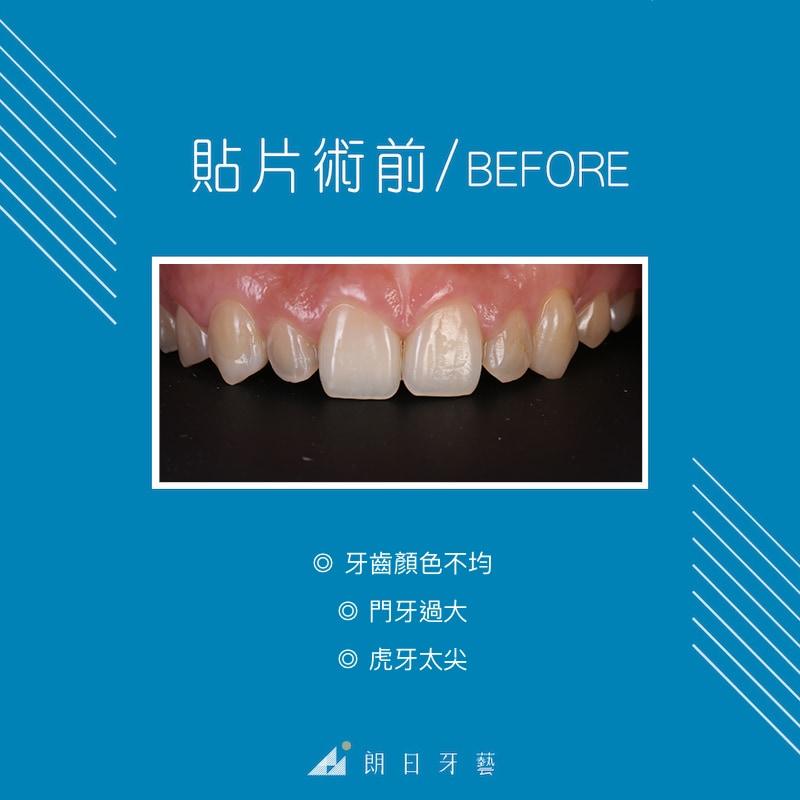 陶瓷貼片療程前-牙齒形狀不好看-牙齒黃-虎牙尖-台中陶瓷貼片推薦-劉得廷醫師