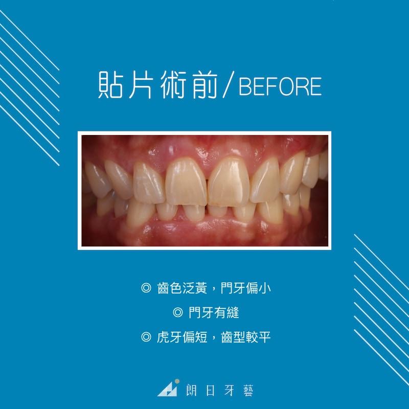陶瓷貼片療程前-牙齒黃-門牙縫-門牙偏小-台中陶瓷貼片推薦-劉得廷醫師