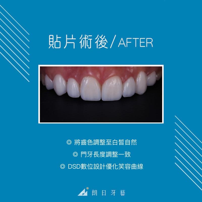 陶瓷貼片療程後-牙齒美白-DSD數位微笑設計-台中陶瓷貼片推薦-劉得廷醫師