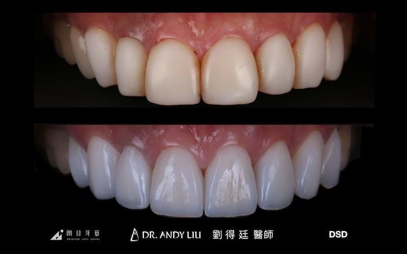 樹脂貼片-牙齒貼片失敗-不良牙齒美白貼片拆除-陶瓷貼片前後比較-陶瓷貼片-台中-劉得廷醫師
