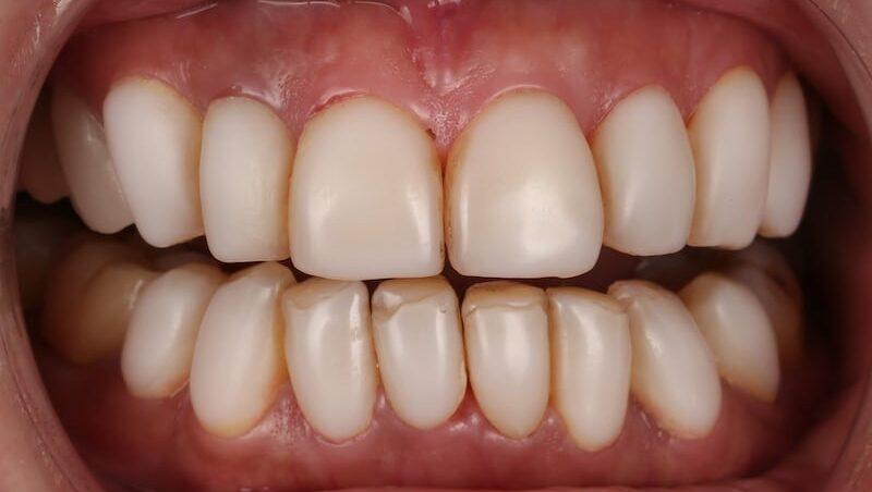 樹脂貼片-牙齒貼片失敗-不良牙齒美白貼片拆除前-前牙咬合-台中陶瓷貼片-推薦-劉得廷醫師