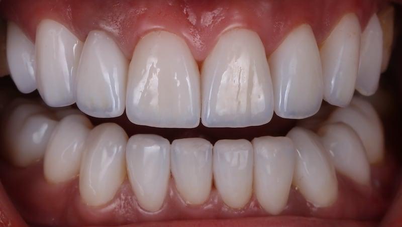 樹脂貼片-牙齒貼片失敗-不良牙齒美白貼片拆除後-前牙咬合-台中陶瓷貼片-推薦-劉得廷醫師