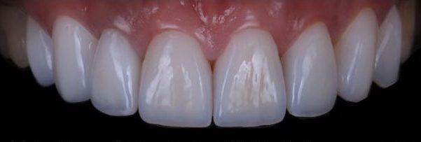 樹脂貼片-牙齒貼片失敗-不良牙齒美白貼片拆除後-上排門牙-台中陶瓷貼片-推薦-劉得廷醫師