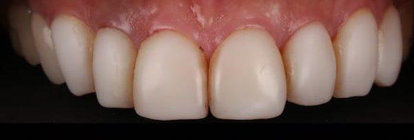 樹脂貼片-牙齒貼片失敗-不良牙齒美白貼片拆除前-上排門牙-台中陶瓷貼片-推薦-劉得廷醫師